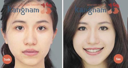 Kết quả trước và sau khi tiến hành điều trị mụn thịt