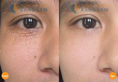 dieu tri mun thit bang laser co2 fractional co dau khong3 Mụn thịt mọc đầy xung quanh mắt chữa ở đâu được