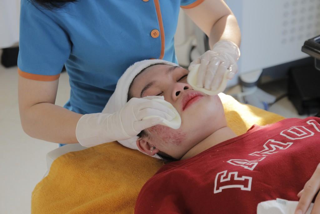 Chuyên viên đang làm sạch da trước khi điều trị bệnh mụn thịt