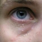 Bệnh mụn thịt trên da có liên quan tới yếu tố gia đình không?