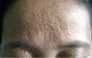 Điều trị mụn thịt trên đầu có hết sạch được không?