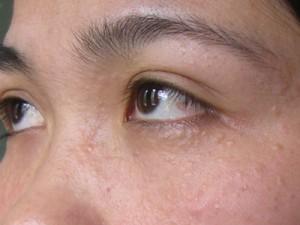 Cách trị mụn thịt quanh mắt hiệu quả hiện nay