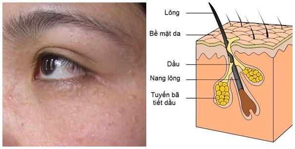 Mụn thịt quanh mắt 1
