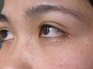 Điều trị mụn thịt quanh mắt sau một lần có khỏi không?