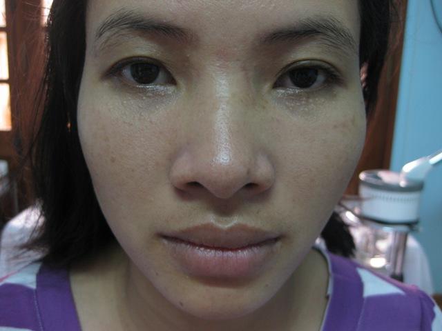 Thuốc trị mụn thịt quanh mắt liệu có hiệu quả
