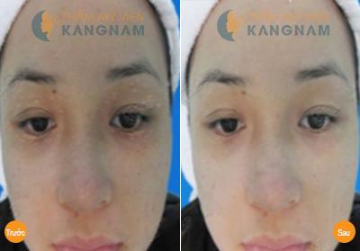 Nguyên nhân và lưu ý khi điều trị mụn thịt quanh mắt6