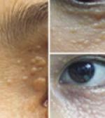 Có cách nào chữa mụn thịt thừa trên mắt hiệu quả không?