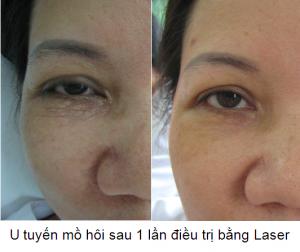Trị mụn thịt quanh mắt bằng Laser Co2 Fractional có an toàn không?