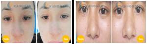 Cách nào chữa trị mụn thịt quanh mắt nhanh, an toàn và hiệu quả nhất?