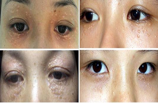 Mụn thịt quanh mắt và cách điều trị triệt để đến 99%3