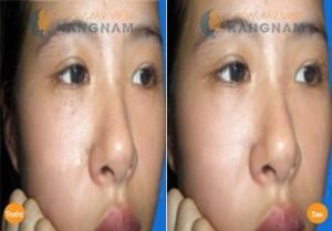 Trị mụn thịt quanh mắt bằng Laser Co2 Fractional tại TMV Kangnam có hiệu quả không?