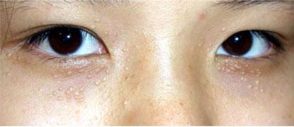 Mụn gạo trên mặt – Thiên nga cũng hóa vịt bầu1