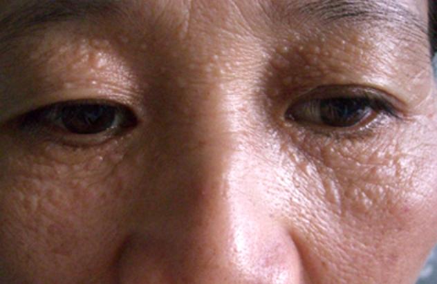 Trị mụn thịt quanh mắt bằng phương pháp tự nhiên dễ áp dụng nhất 1