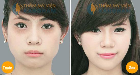 Sử dụng thuốc trị mụn thịt quanh mắt có ảnh hưởng đến mắt không? 3