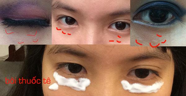 """""""Chia sẻ"""" kinh nghiệm trị mụn thịt quanh mắt của nữ sinh Hà Thành1"""
