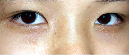 """""""Chia sẻ"""" kinh nghiệm trị mụn thịt quanh mắt của nữ sinh Hà Thành4"""