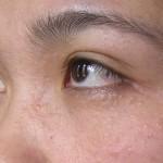 Trị mụn thịt quanh mắt bằng Laser CO2 Fractional bao lâu thì phục hồi?