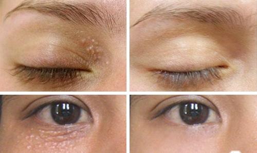 Trị mụn thịt quanh mắt bằng phương pháp tự nhiên dễ áp dụng nhất 6