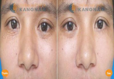 Có nên chữa mụn thịt quanh mắt cho trẻ em bằng tỏi? 112