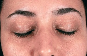 Sử dụng thuốc trị mụn thịt quanh mắt có ảnh hưởng đến mắt không?