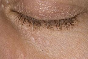 Phát hiện cách điều trị mụn thịt quanh mắt hiệu quả nhất 2015 1