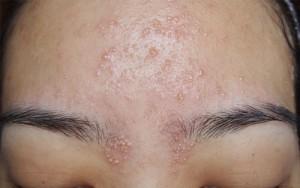 5 cách trị mụn gạo trên mặt đơn giản, hiệu quả bất ngờ