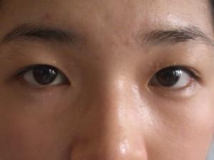 """""""Tuyệt kỹ"""" chăm sóc da bị mụn thịt quanh mắt"""