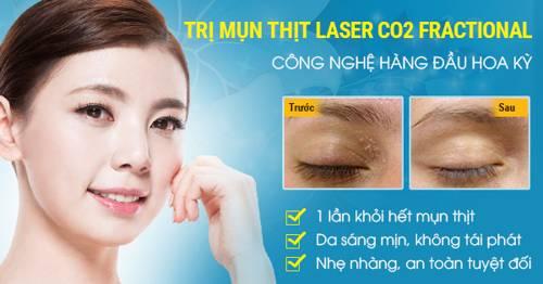 Trị mụn thịt ở mũi bằng công nghệ Laser Co2 Fractional có đau không?