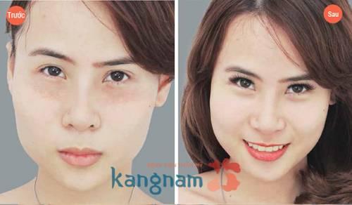 Hình ảnh trên từ KH trước đây của Kangnam, hiệu quả với từng trường hợp cụ thể là khác nhau