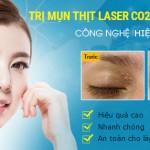 Cách điều trị mụn thịt quanh mắt an toàn hiệu quả tuyệt đối