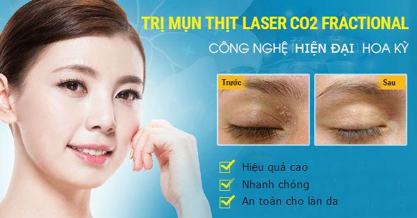Trị mụn thịt ở mũi bằng công nghệ Laser Co2 Fractional