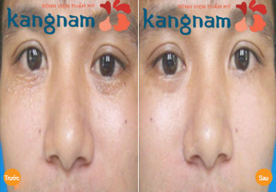 Kết quả trị mụn thịt tại Bệnh viện thẩm mỹ Kangnam1