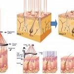 Da trắng sáng sạch mụn thịt với công nghệ Laser CO2 Fractional