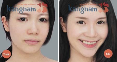 Kết quả chữa mụn thịt tại Thẩm mỹ viện Kangnam
