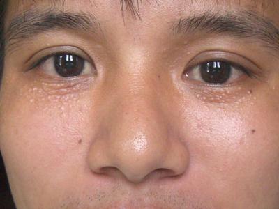 Điều trị mụn thịt quanh mắt 1