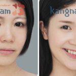 Khách hàng thực tế nói gì sau khi trị mụn thịt tại BVTM Kangnam?