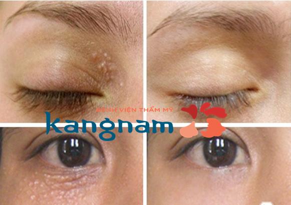 trị mụn thịt quanh mắt bằng laser co2 fractional 1