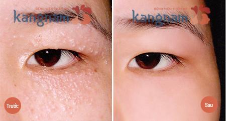 trị mụn thịt quanh mắt bằng laser co2 fractional 2