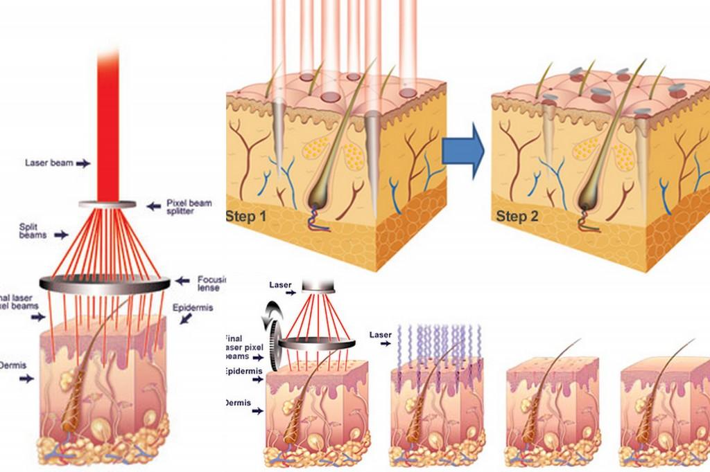 công nghệ laser co2 fractional là gì 1