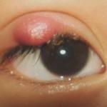 Mí mắt nổi mụn trắng là bệnh gì? Triệu chứng và cách điều trị mụn