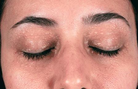 Cách trị mụn gạo quanh mắt 1