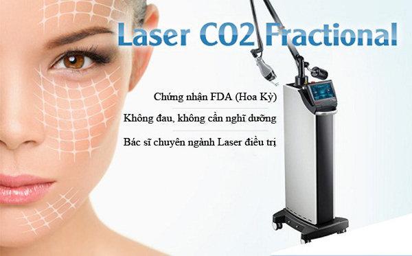 trị mụn thịt bằng laser co2 fractional