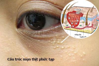 Nổi hạt trắng ở mí mắt 6