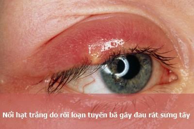 Nổi hạt trắng ở mí mắt 4