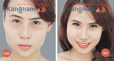 Hình ảnh trước sau điều trị mụn thịt
