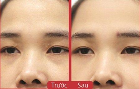 trị mụn thịt quanh mắt 5